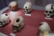 五千年前印加出现开颅手术 怎么做到的?[多图]